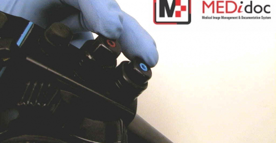 Capture images using the Endoscope Buttons…!!